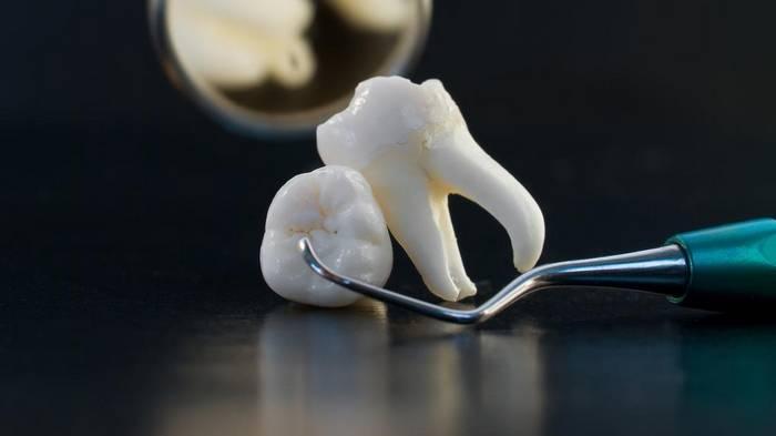 Зубной налет исчезнет спустя 5 минут