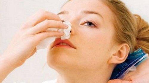Как остановить носовое кровотечение. Это должен знать каждый