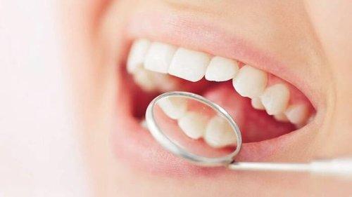 Список полезных для зубов продуктов