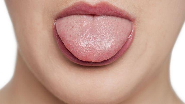 Язык — зеркало организма! Вот как определить состояние организма по языку…