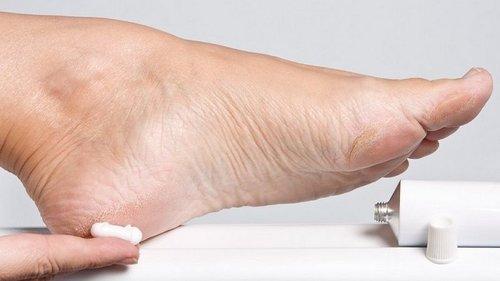 Теперь можно забыть о сухой и потрескавшейся коже ног