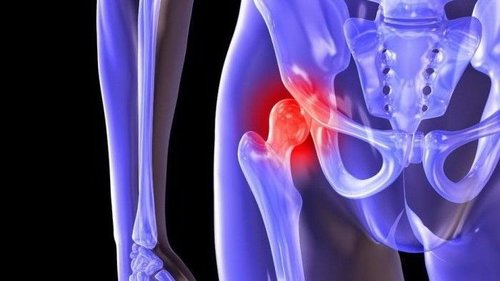 Способы лечения артроза тазобедренного сустава