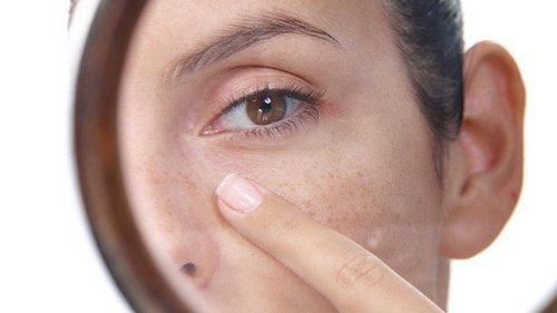 Ты даже не представляешь, о чём свидетельствует появление белых точек вокруг глаз