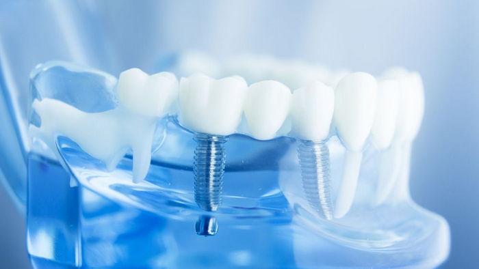 Задумались об имплантации зубов? Говорим о том, что нужно знать перед тем, как идти к стоматологу