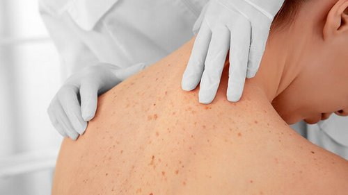 Не только родинки: 5 симптомов рака кожи, которые заметит ваш косметолог