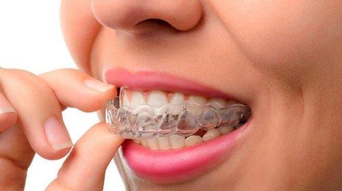 Когда будет полезной капа для отбеливания зубов?