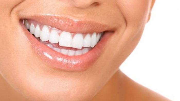 Эффективные способы отбелить зубы в домашних условиях