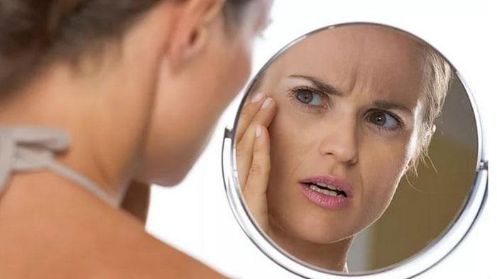 Опасные пятна. Признаки каких «женских» болезней можно увидеть на коже лица