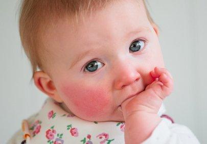 Аллергия у детей: виды, причины, симптомы, диагностика и лечение заболевания