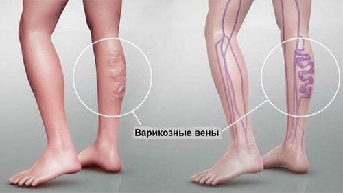 Как скрыть варикоз на ногах