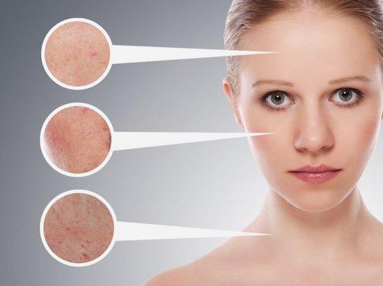 Проблемная кожа лица: что делать?